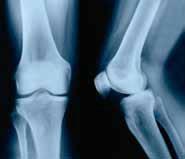 Røngtenbillede af knæ